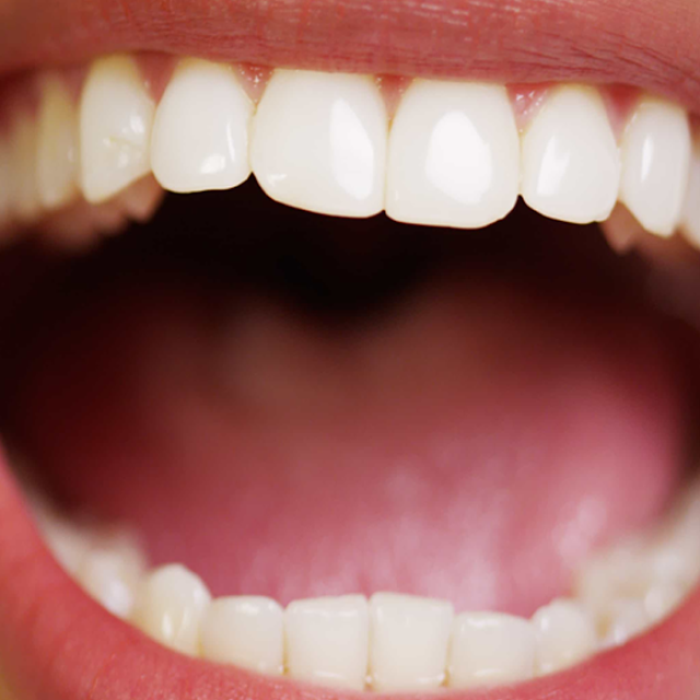 Let's learn about how to get rid of bad breath - Symptoms and Treatment