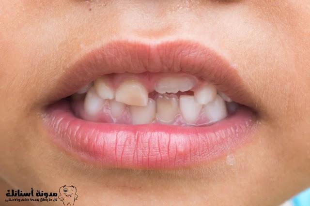 تسوس الأسنان عوامل الخطر ومراحل المرض وكيفية الوقاية منه.