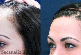 saç ekiminden sonra saçlar ne zaman çıkar