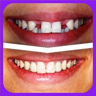 implan gigi jakarta harga, implan gigi murah jakarta, biaya implan gigi jakarta, implan gigi terbaik bogor