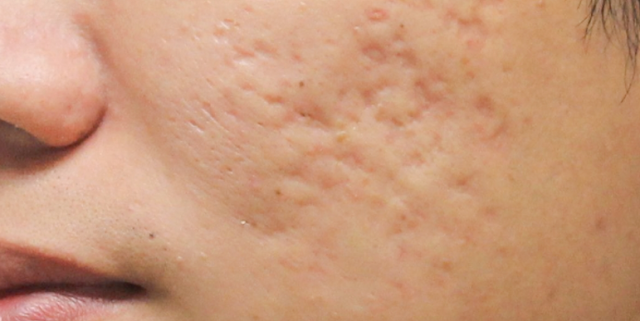 Natural Remedies to eliminate scars or acne marks easily at home