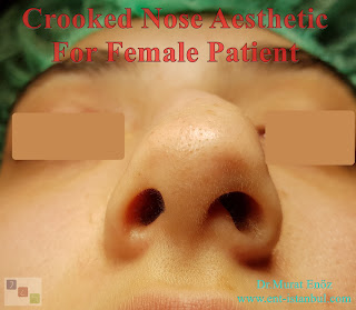 Crooked Nose Aesthetic Surgery in Istanbul,Twisted Nose Rhinoplasty,