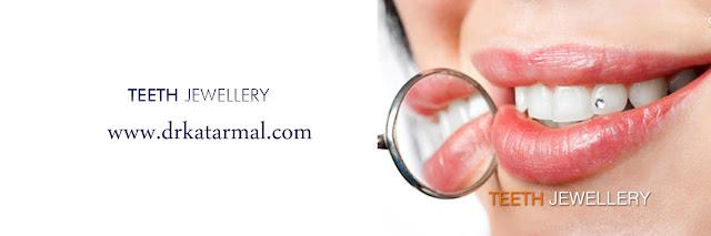 Teeth Jewellery, diamond on tooth in jamnagar cosmetic dentist