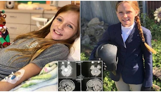 Κορίτσι με μη χειρουργήσιμο όγκο στον εγκέφαλο έγινε καλά από θαύμα και οι γιατροί σκίζουν τα πτυχία τους