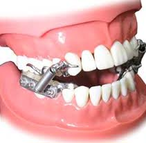 """Dental oral device is one more way to treat mild-moderate OSA, according to the dental surgeon Susan Runner. Dental surgeons and medical doctors function side by side to find out the suitability of an oral dental device for a sufferer. The dental oral device is put on simply at sleeping time and adjusted similar to as an orthodontic retainer or a sports mouth guard according to the """"American Academy of Dental Sleep Medicine"""". It helps to move the jaw a little bit forward thus maintaining the upper airway open."""
