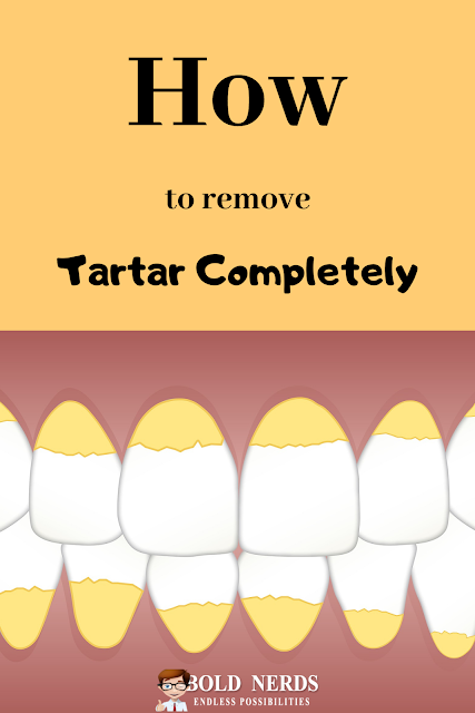 How to Remove Tartar Completely with These Super Homemade Recipes