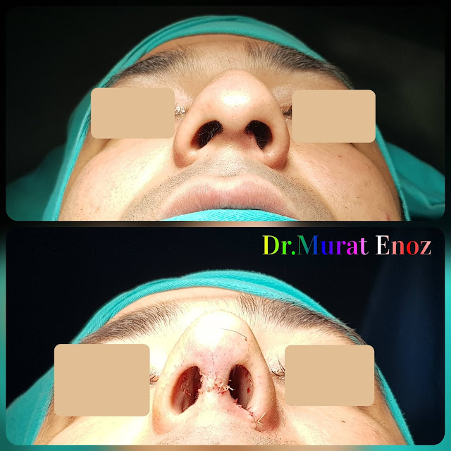 Thick Skinned Male Rhinoplasty Turkey, Nose Job For Men Istanbul, Droopy Nose Aesthetic For Men