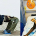 Young Boy With Backward Facing Legs Excited After Undergoing Surgery. Photos