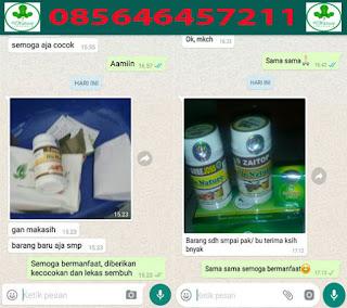 AmbeJOSS Zaitop Herbal AntiHemoroid Obat Wasir