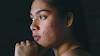 6 Natural home-remedies that can fade your acne