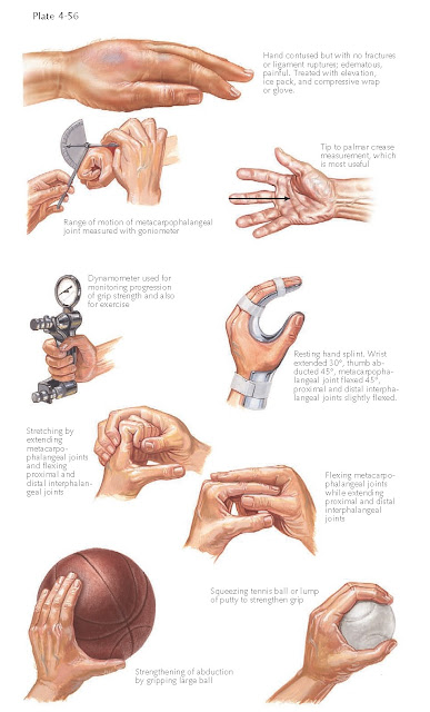 INJURY TO HAND AND FINGERS-REHABILITATION AFTER INJURY TO HAND AND FINGERS
