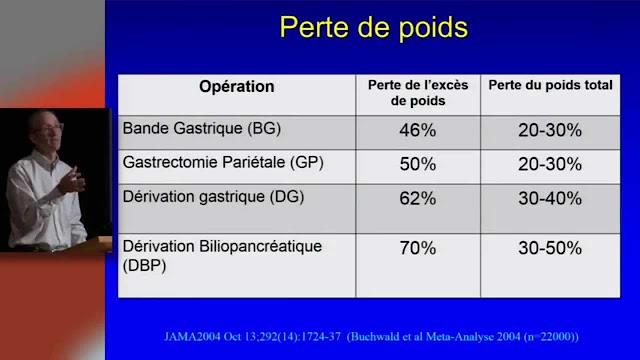 IUCPQ chirurgie bariatrique