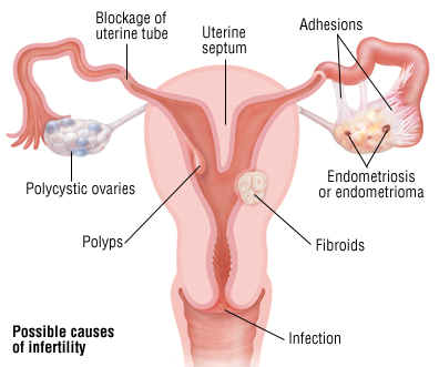 common cause of female infertility