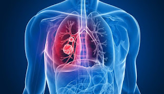 An Introduction To Mesothelioma