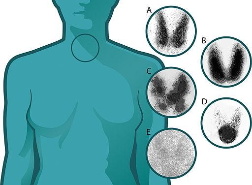 Asuhan Keperawatan Pada Pasien Dengan Penyakit Tirotoksikosis - Intervensi