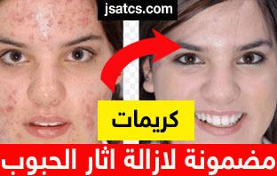 كريم لازالة البقع السوداء من الوجه نهائيا
