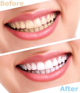 Tẩy trắng răng có gây ra nhiều đau đớn?