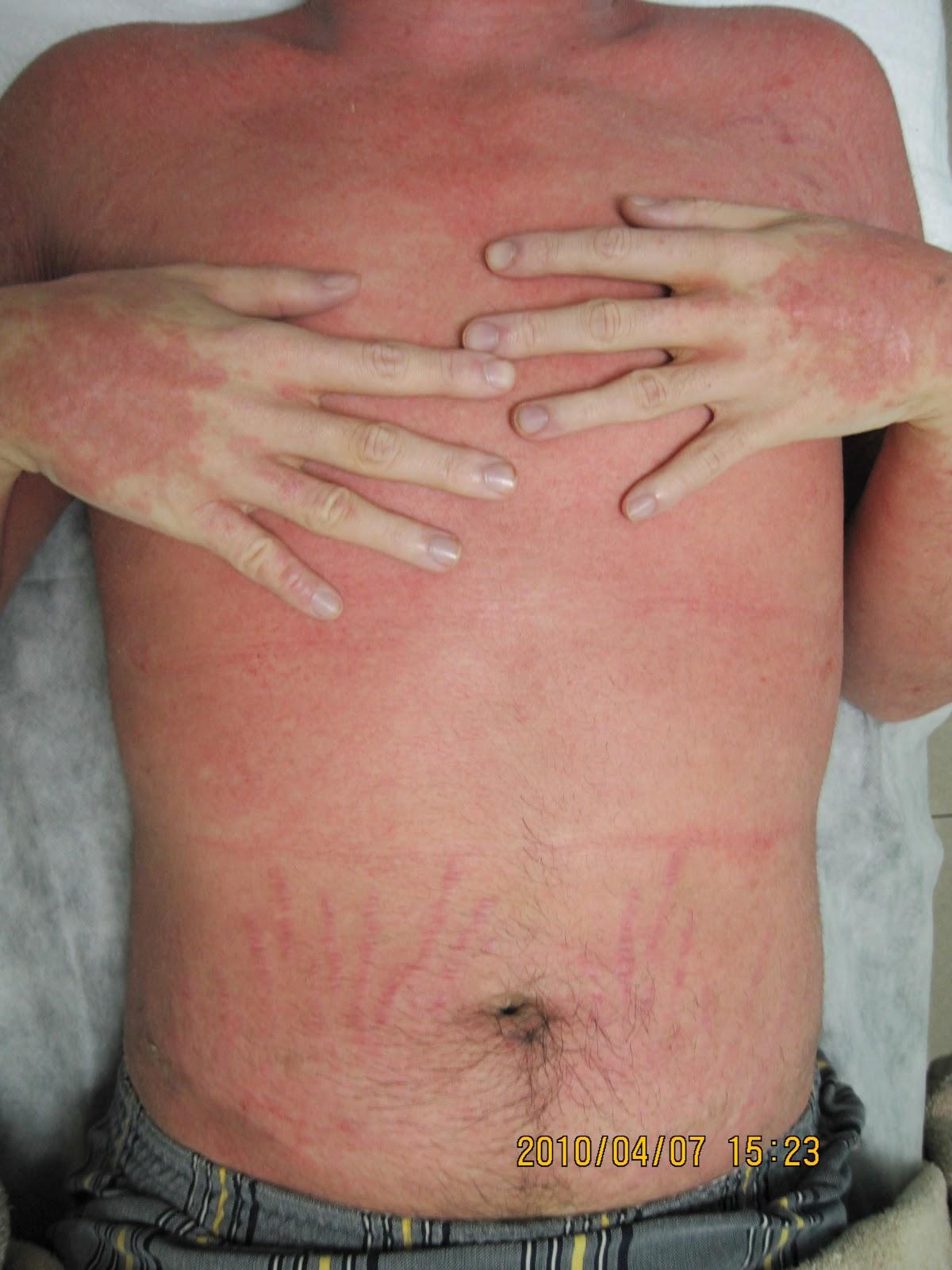 異位性皮膚炎治療經驗分享: 12年成人異位性皮膚炎治療-奮鬥史1 (治療過程)