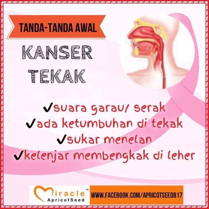 kanser tekak
