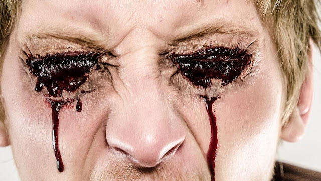 البكاء دما أمر غريب وقد يكون مرعبا (الصورة مجازية تمثيلية-بيكسابي)