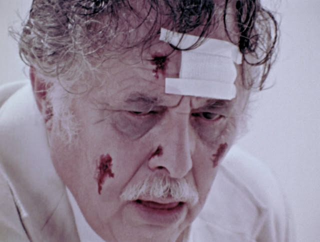 An older man in a white suit sits in a white room with blood on his face
