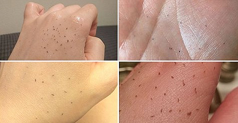 Is Skin Gritting The Key To Flawless Skin? Beauty Fans Swear By This Quirky Method