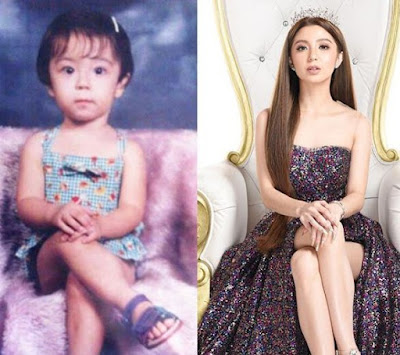 Donnalyn Bartolome picture in her childhood and now