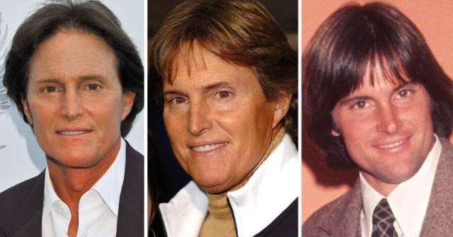 Chatter Busy Bruce Jenner Plastic Surgery 2009