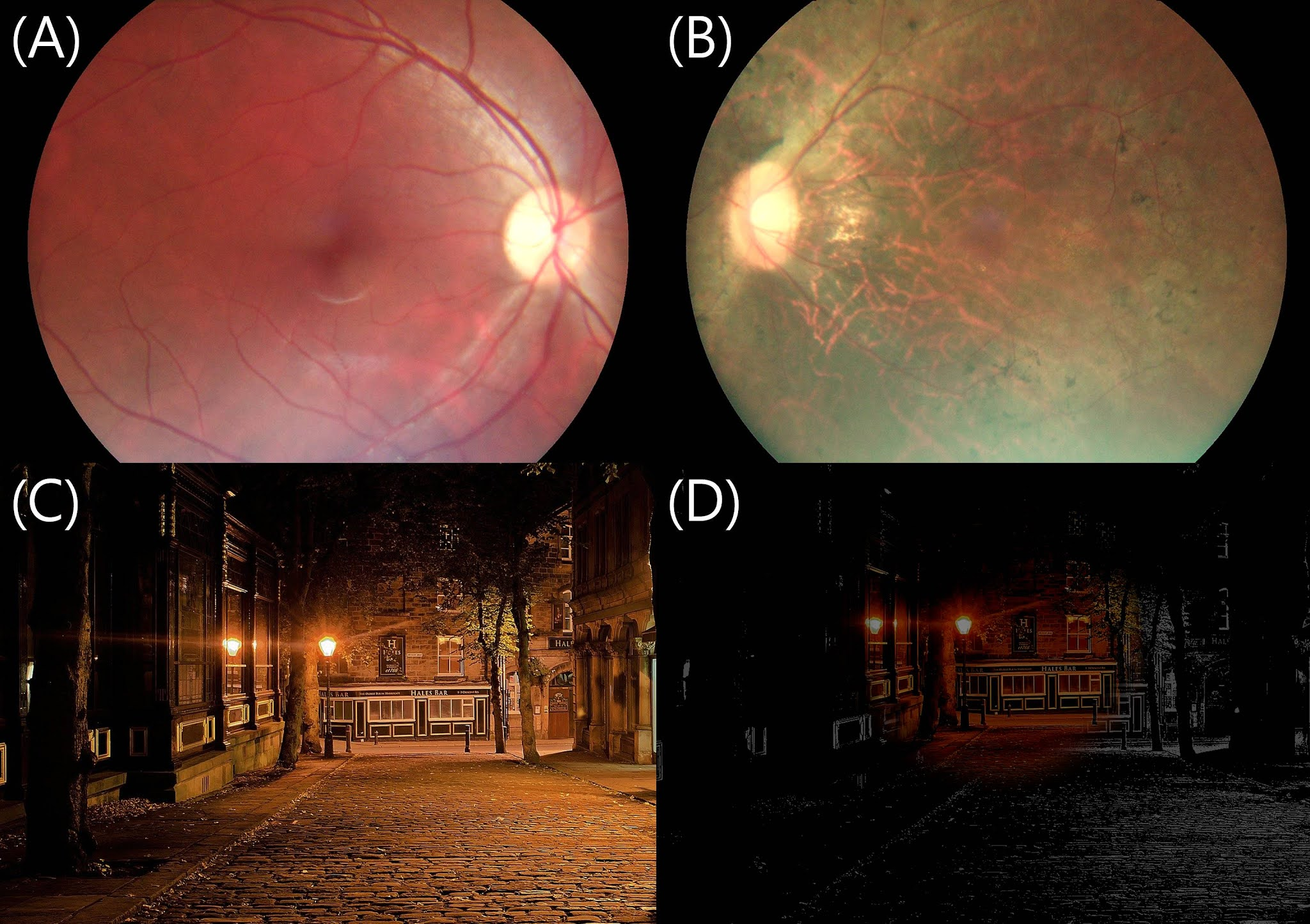 (A)正常眼睛與(B)視網膜色素變性的眼底攝影。(C)正常人的視野模擬圖與(D)夜盲症患者看到的視野