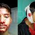 Doktor bingung remaja hidap penyakit misteri, darah keluar dari telinga, mata, mulut & rambut hingga 10 kali sehari