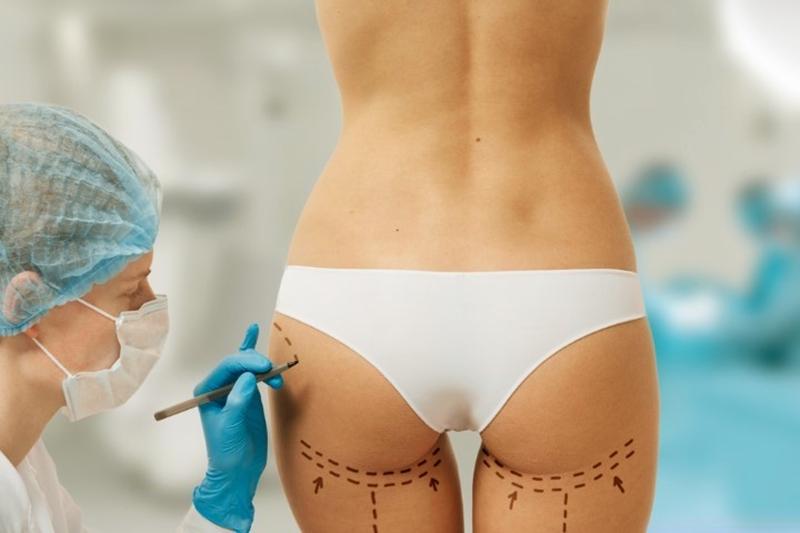 Popo kaldırma ameliyatı