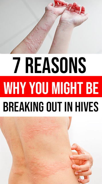 7 Reasons Why You Might Be Breaking Out in Hives