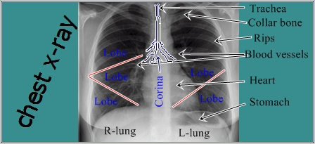 Chest X-ray seen photo