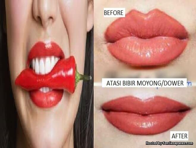 Pembedahan Menipiskan Bibir Jadi Trend Di Asia