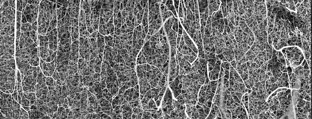 17. 3D vasculature of the brain of an adult mouse. (Photo by Dr. Andrea Tedeschi  The Ohio State University