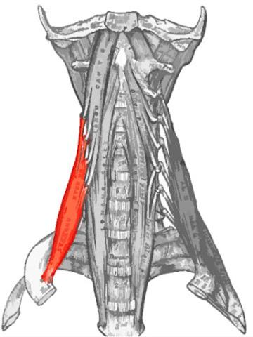 Músculo escaleno anterior resaltado de color rojo