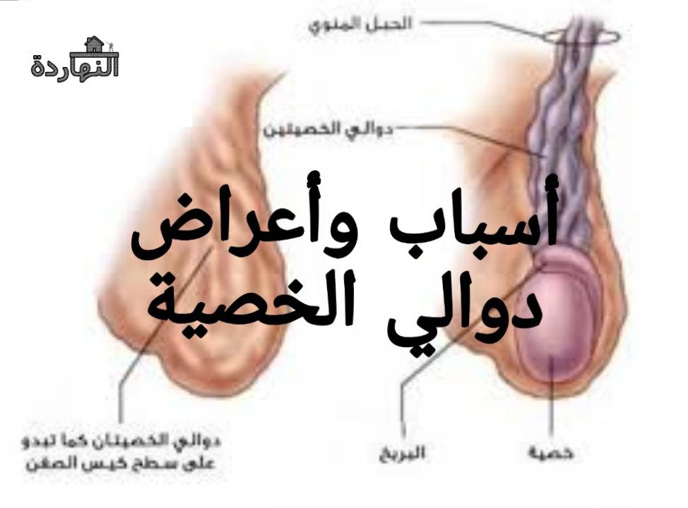 دوالي الخصية وأسبابها وأعراضها
