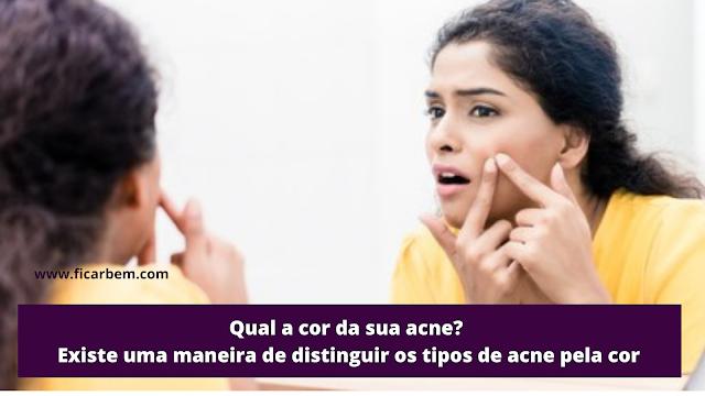 Os tipos de acne são classificados em quatro fases