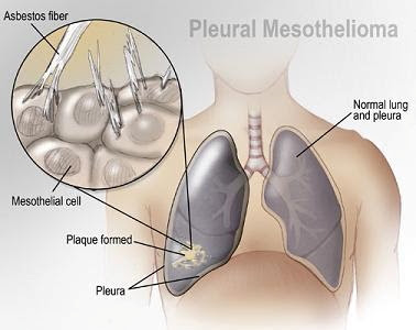 Why Practice in Mesothelioma Law?