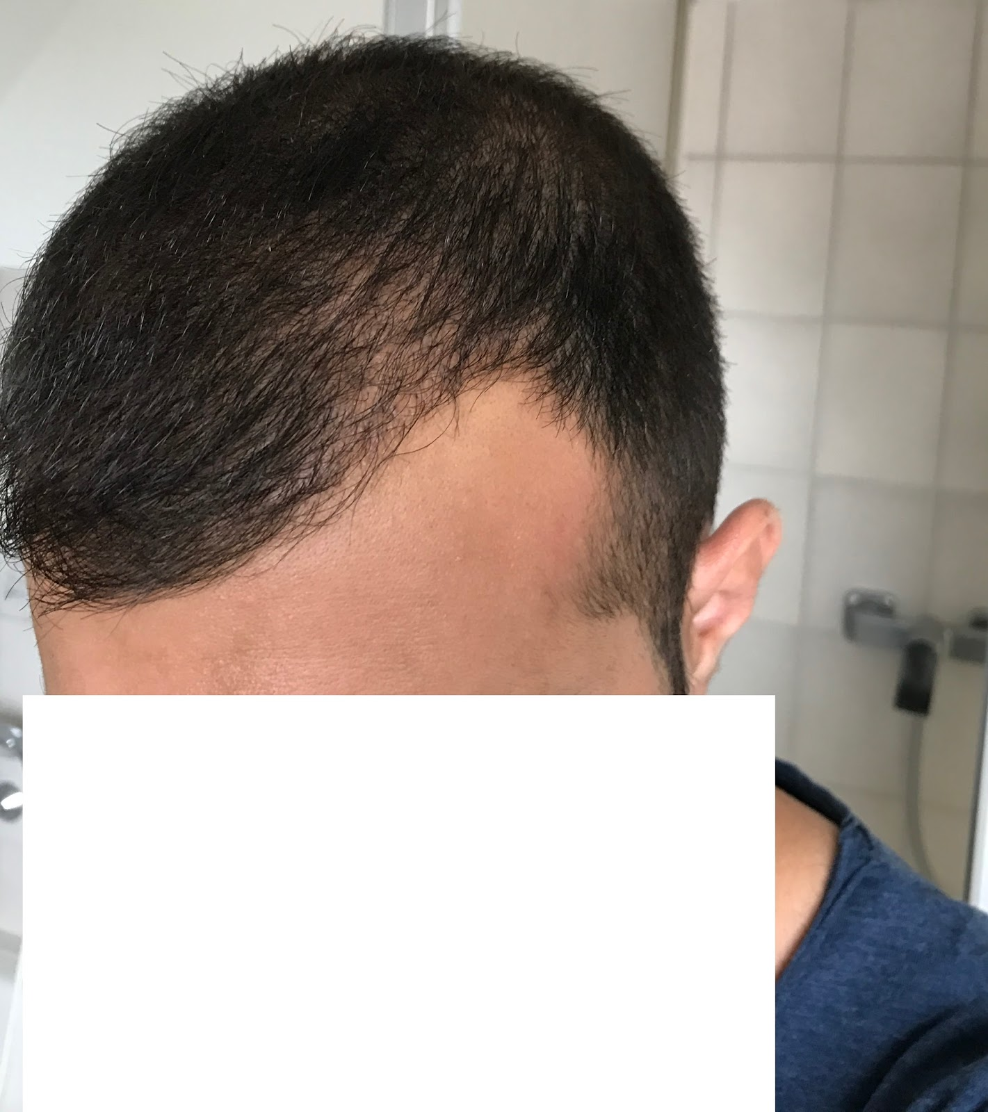 Nach 4 monaten haartransplantation 5 Haartransplantation Heilungsdauer