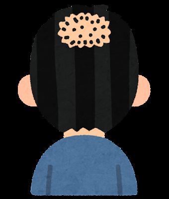 頭頂部の薄毛のイラスト