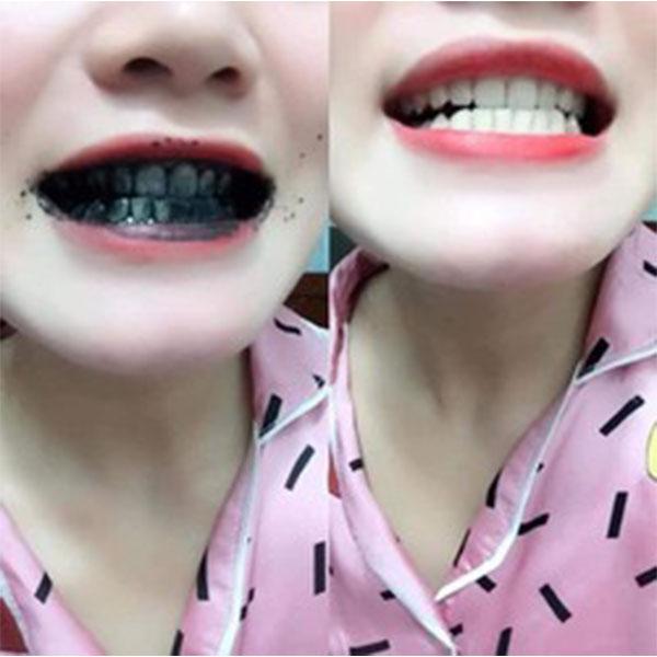 Vì sao nên chọn bột trắng răng Dạ Thảo Liên? Đó là vì chỉ cần qua các bước đơn giản là bạn đã có hàm răng trắng sáng ngay tại nhà