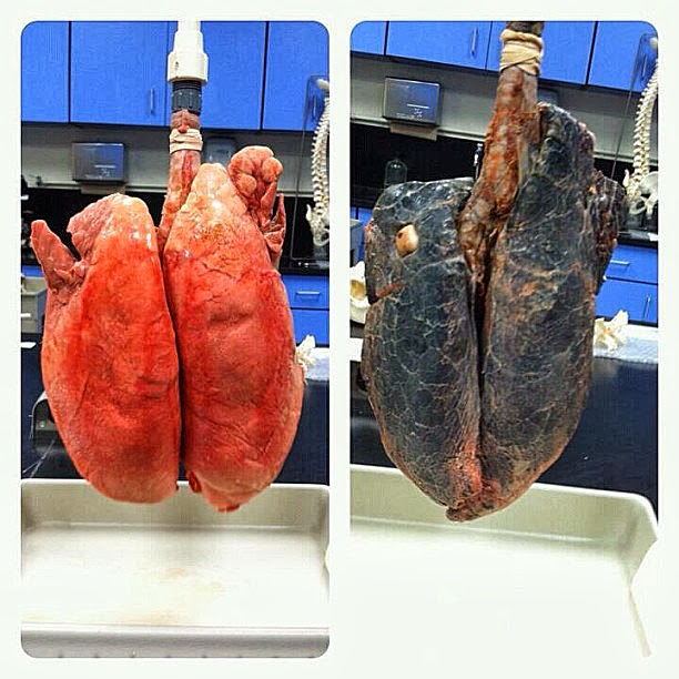 Smoking health effects helpful article