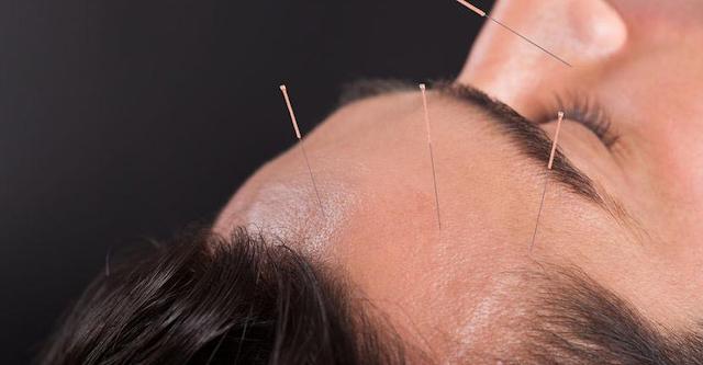 Akupuntur di Kepala