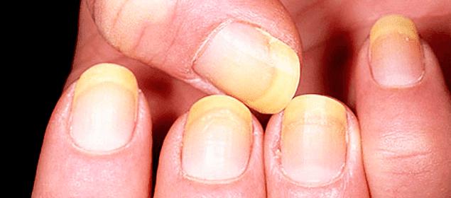 remedios para blanquear las uñas amarillas