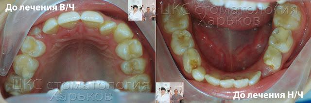 Раннее лечение брекетами, форма зубных рядов ситуация до