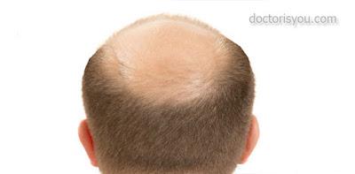 الدكتور هو انت أسباب وعلاج تساقط الشعر  اسباب تساقط الشعر بكثافة اسباب تساقط الشعر بغزارة