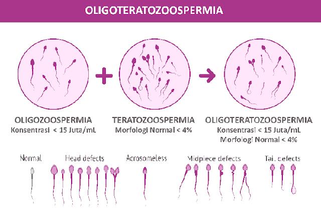 Hasil Tes Sperma OligoTeratozoospermia