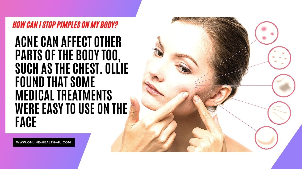 what-causes-pimples-how-to-treat-and-prevent-it-2021