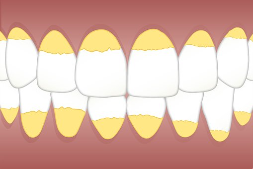 Sarro dental: ¿Qué es y por qué se produce?